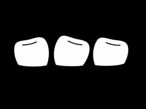 がたがた歯並びイラスト